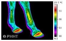 thermogram